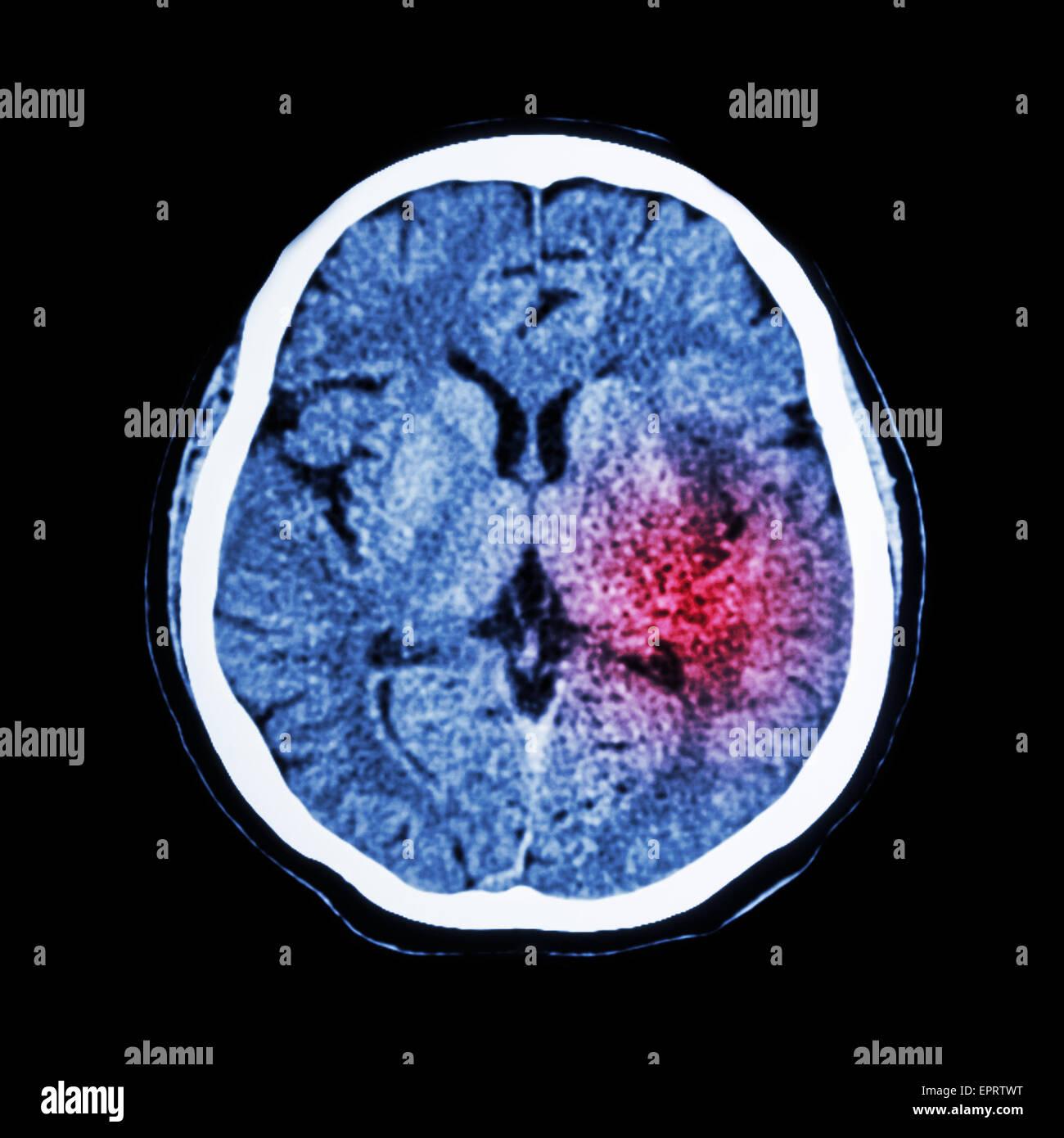 CT-Scan des Gehirns zeigen ischämischen Schlaganfall oder ...