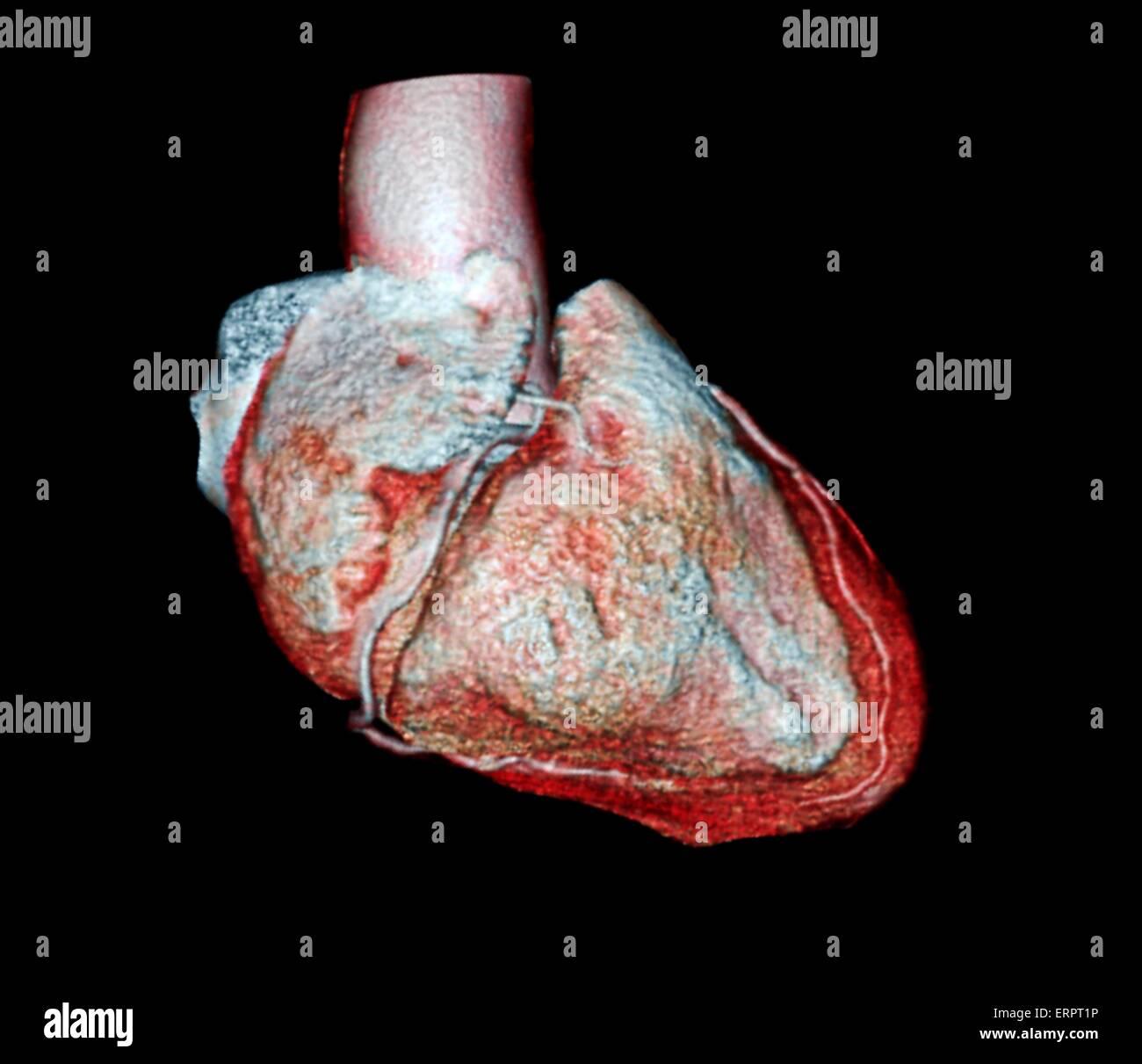 Farbige 3D Computertomographie (CT) Untersuchung des Herzens eines ...