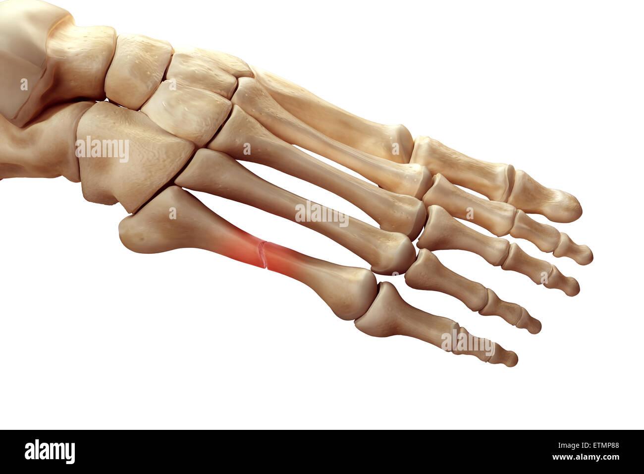 Darstellung der Knochen des Fußes mit einer Pause in einem ...