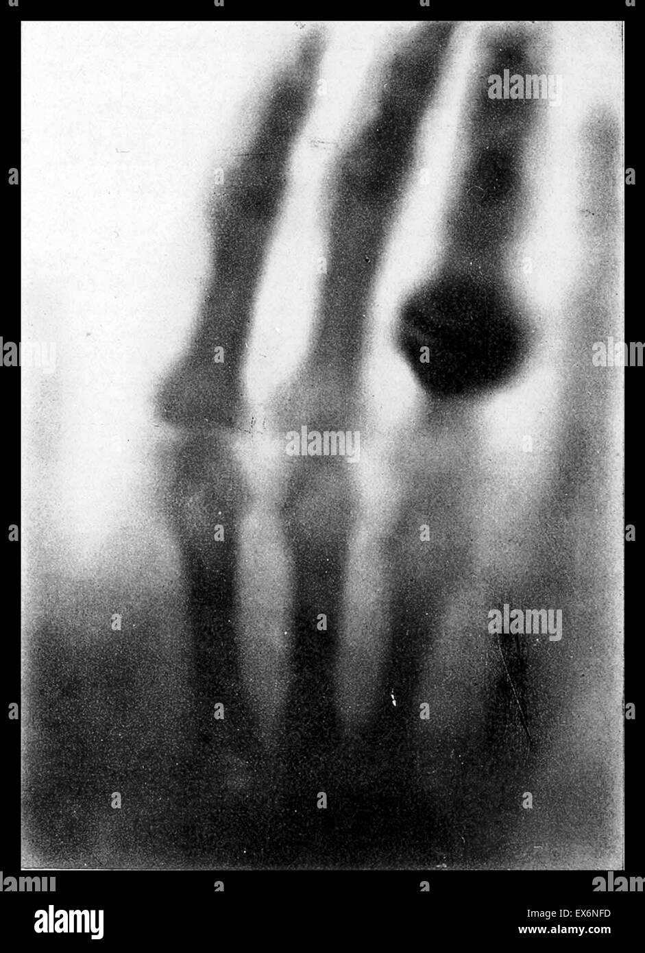 Die Hand der Frau Wilhelm Roentgen: das erste Röntgenbild, 1895 Stockfoto