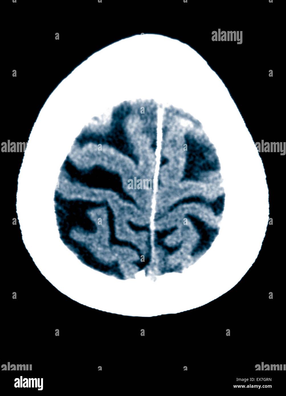 CT-Scan ein 84 Jahre alter Mann mit Alzheimer-Krankheit.  CT zeigt Hirnatrophie. Stockbild