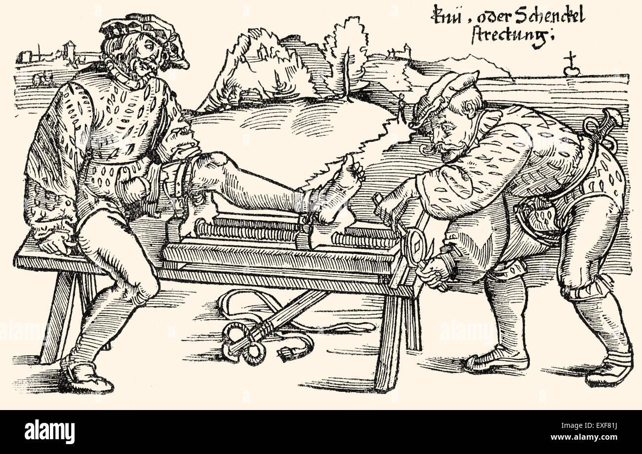 """Beinstrecker auf eine Dehnung rack, orthopädische Therapie, Holzschnitt aus """"Feldtbuch der Wundartzney"""" Stockbild"""