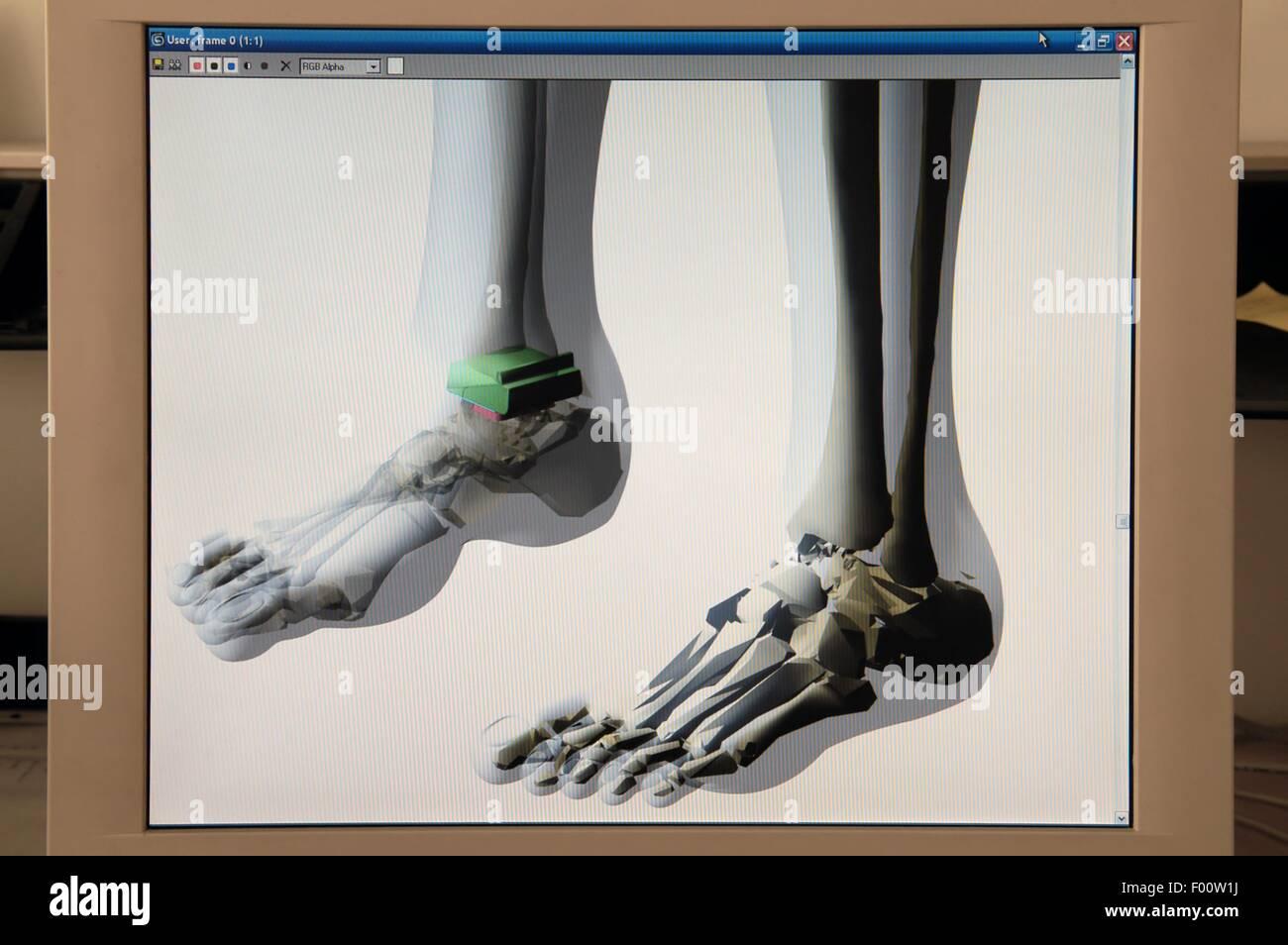 Feet Radiography Stockfotos & Feet Radiography Bilder - Alamy