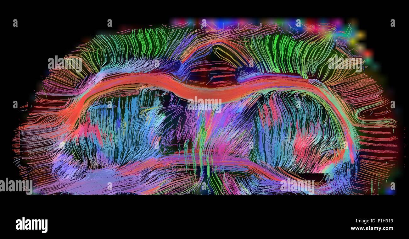 Neuroanatomy Stockfotos & Neuroanatomy Bilder - Alamy