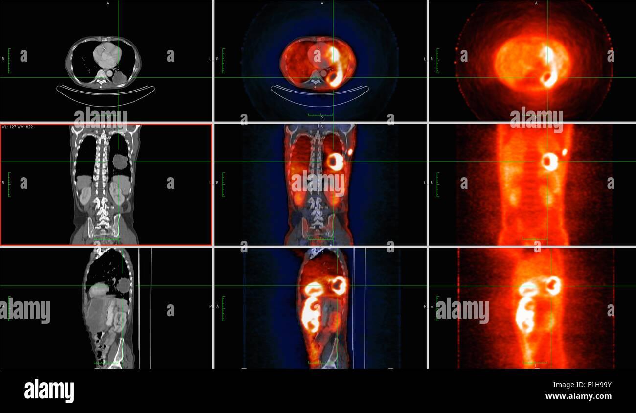 Co registrierte PET-CT Untersuchung dual Modalität Bildscanner ...