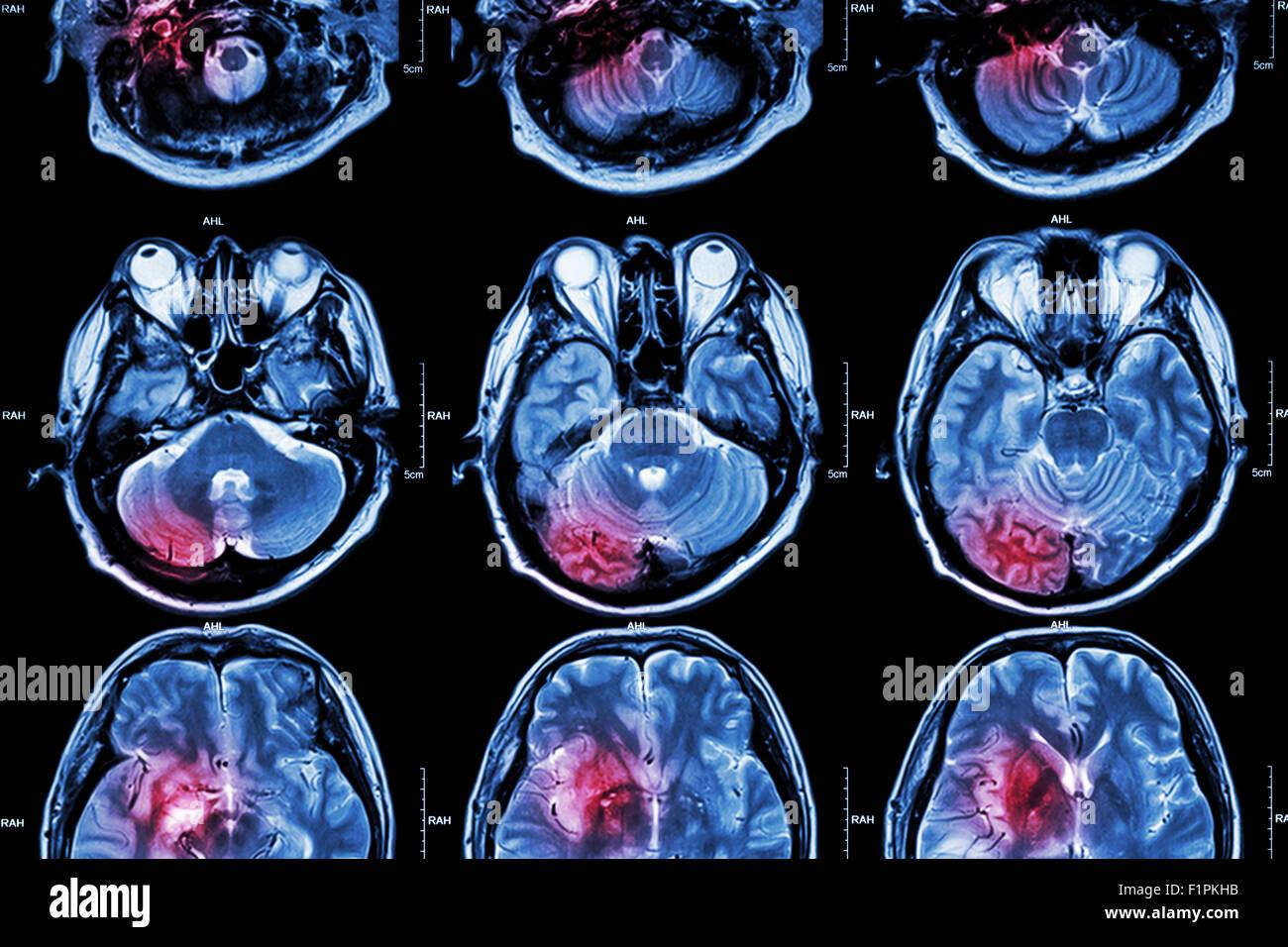 MRT (Magnet-Resonanz-Tomographie) des Gehirns zu Filmen (das MRT des Gehirns ist normale Gehirn aber roten Farbbereich Stockbild