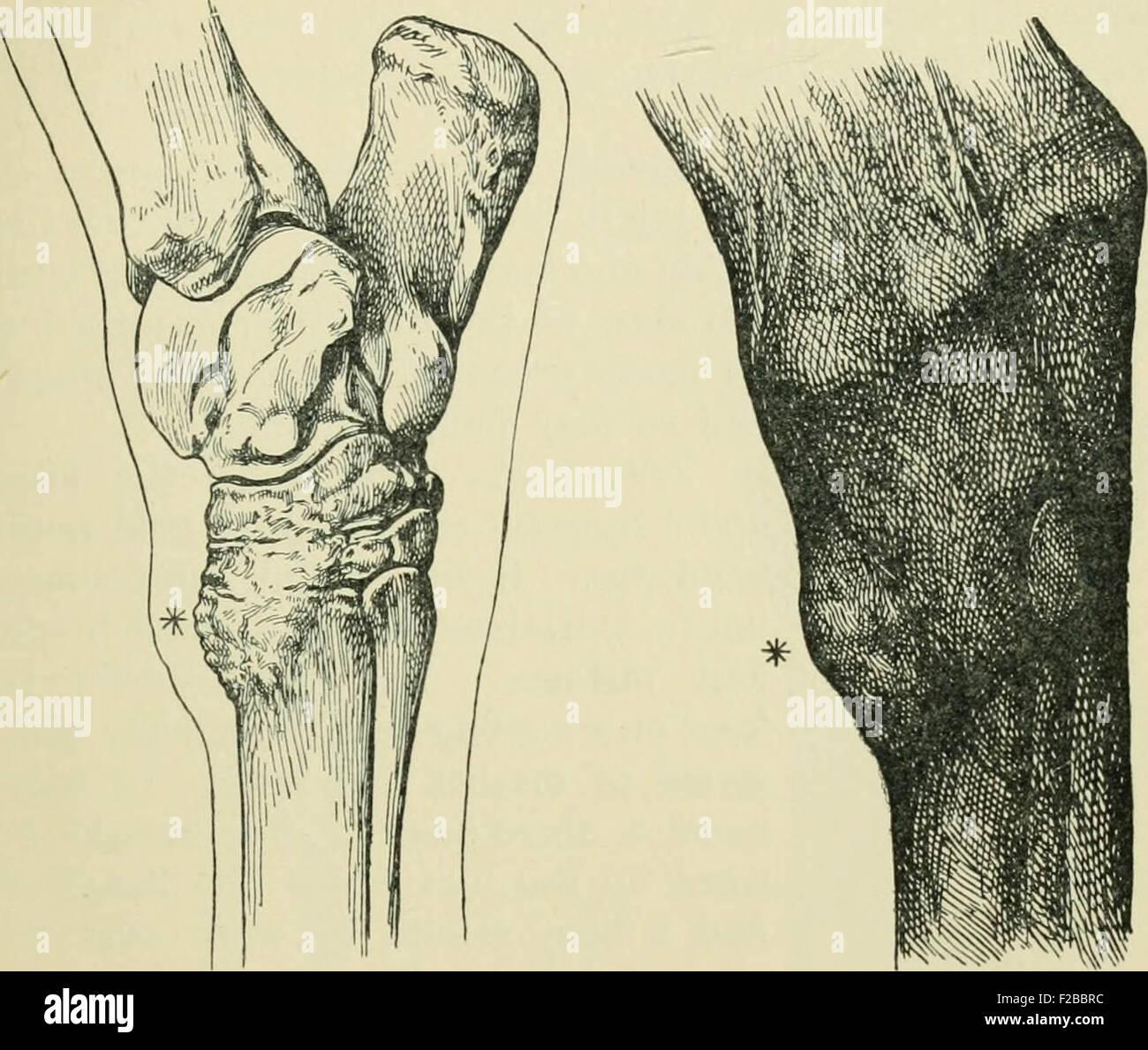 Beste Anatomie Physiologie Und Krankheit Fotos - Menschliche ...