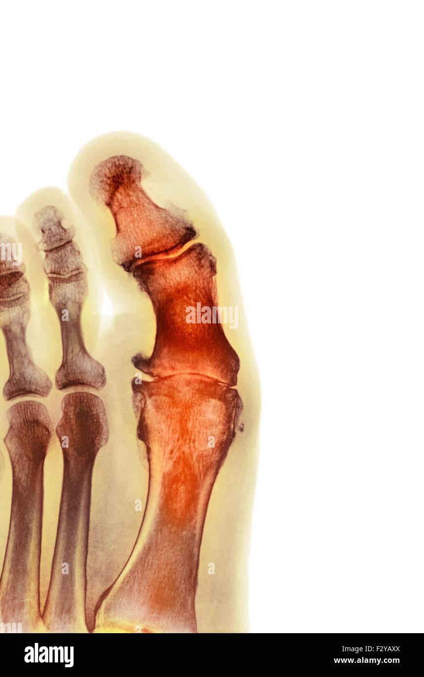 Degenerativen Fuß Verformung. Farbig x-ray einen Schnitt durch den ...