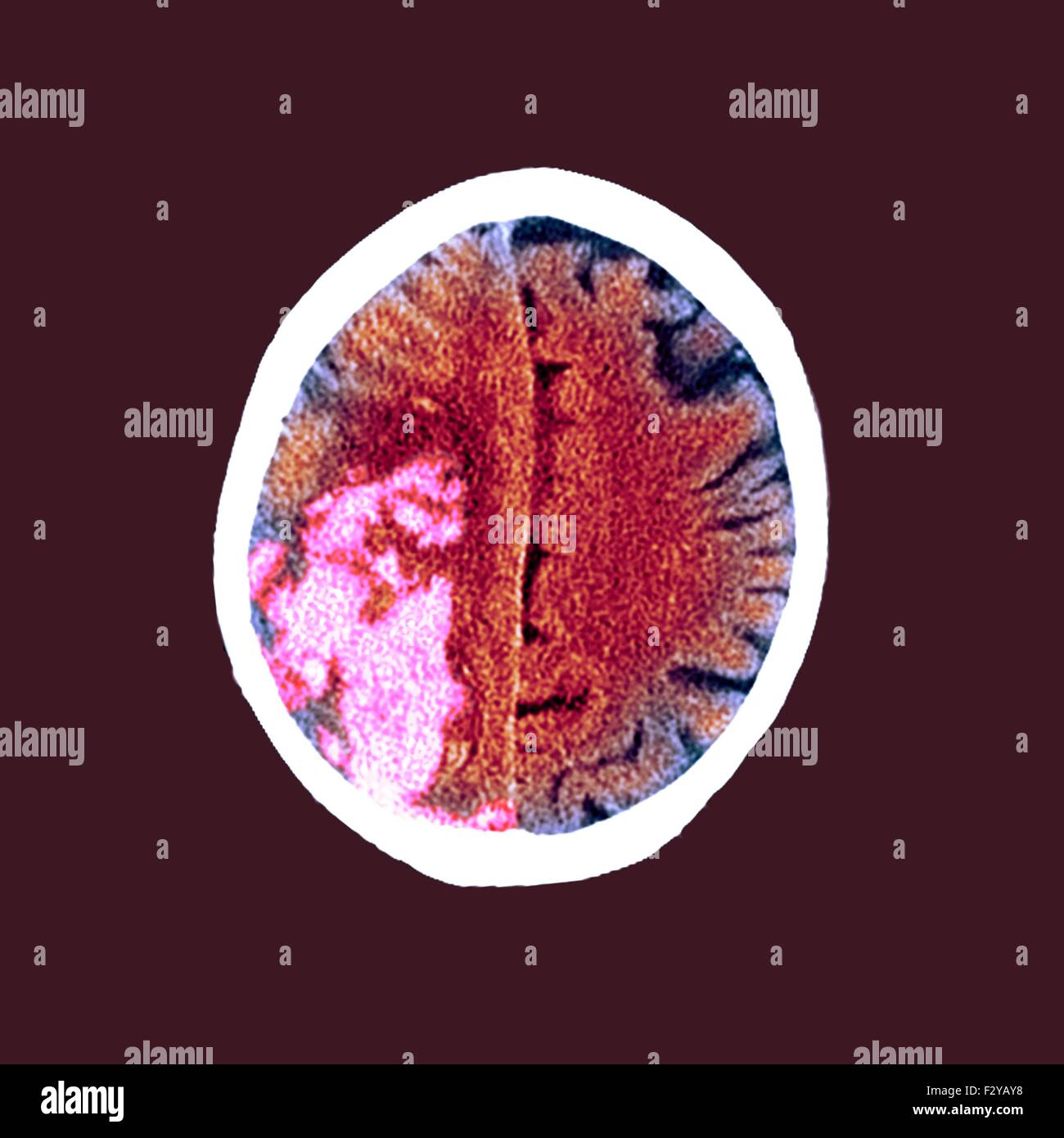 Disease Mri Stockfotos & Disease Mri Bilder - Seite 3 - Alamy