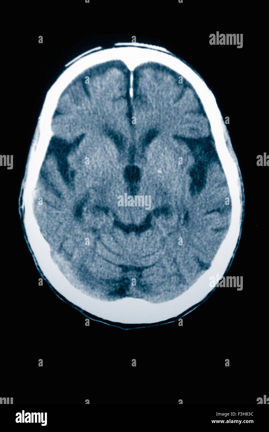 CT-Scan 84 Jahre alter Mann mit Alzheimer-Krankheit.  CT zeigt Hirnatrophie mit kleinen Windungen und großen Stockbild