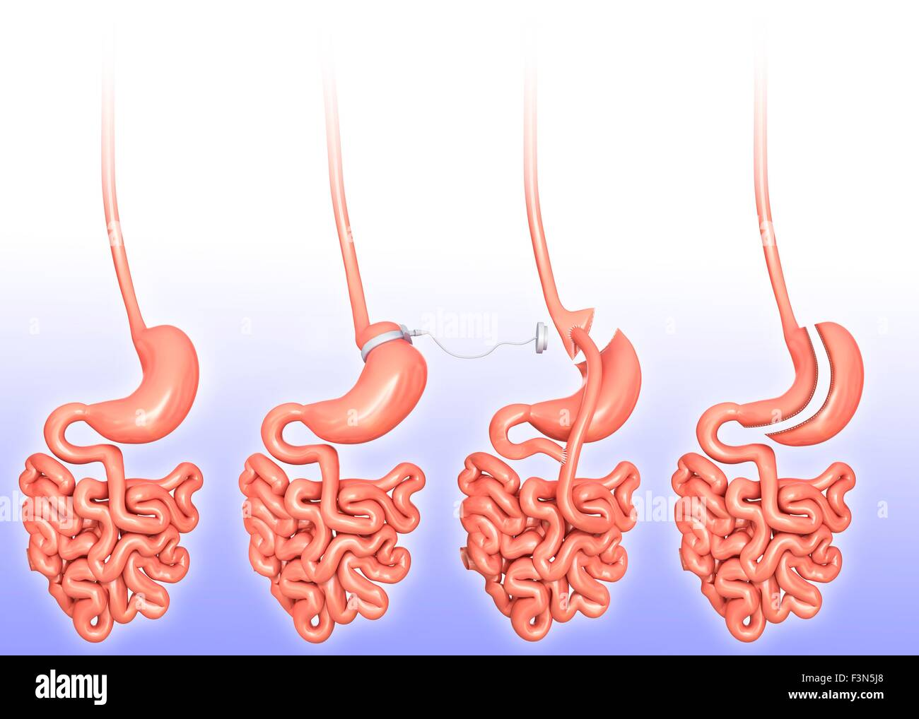 Bariatric Surgery Stockfotos & Bariatric Surgery Bilder - Alamy