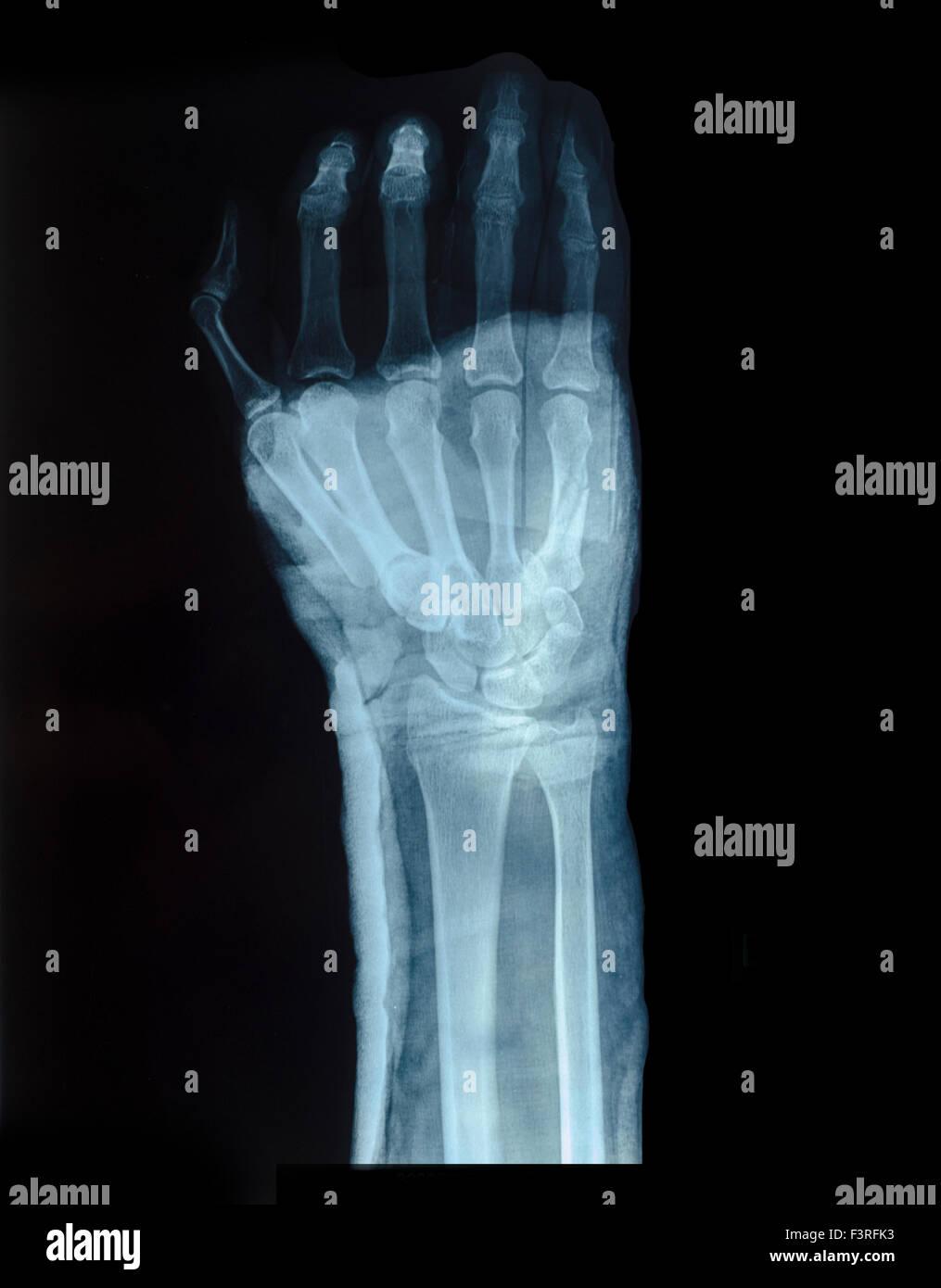 Röntgenbild Von Menschenhand Für Fraktur Stockfoto Bild 88412999