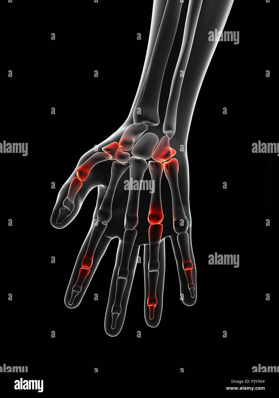 schmerzhafte Fingergelenke Stockbild