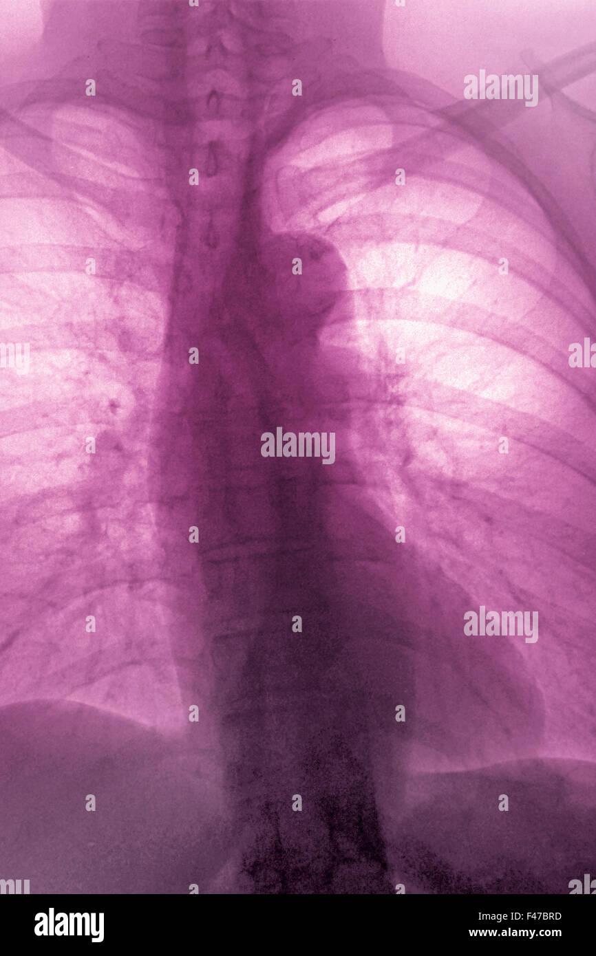 Schön Bild Der Aorta In Den Menschlichen Körper Fotos - Menschliche ...