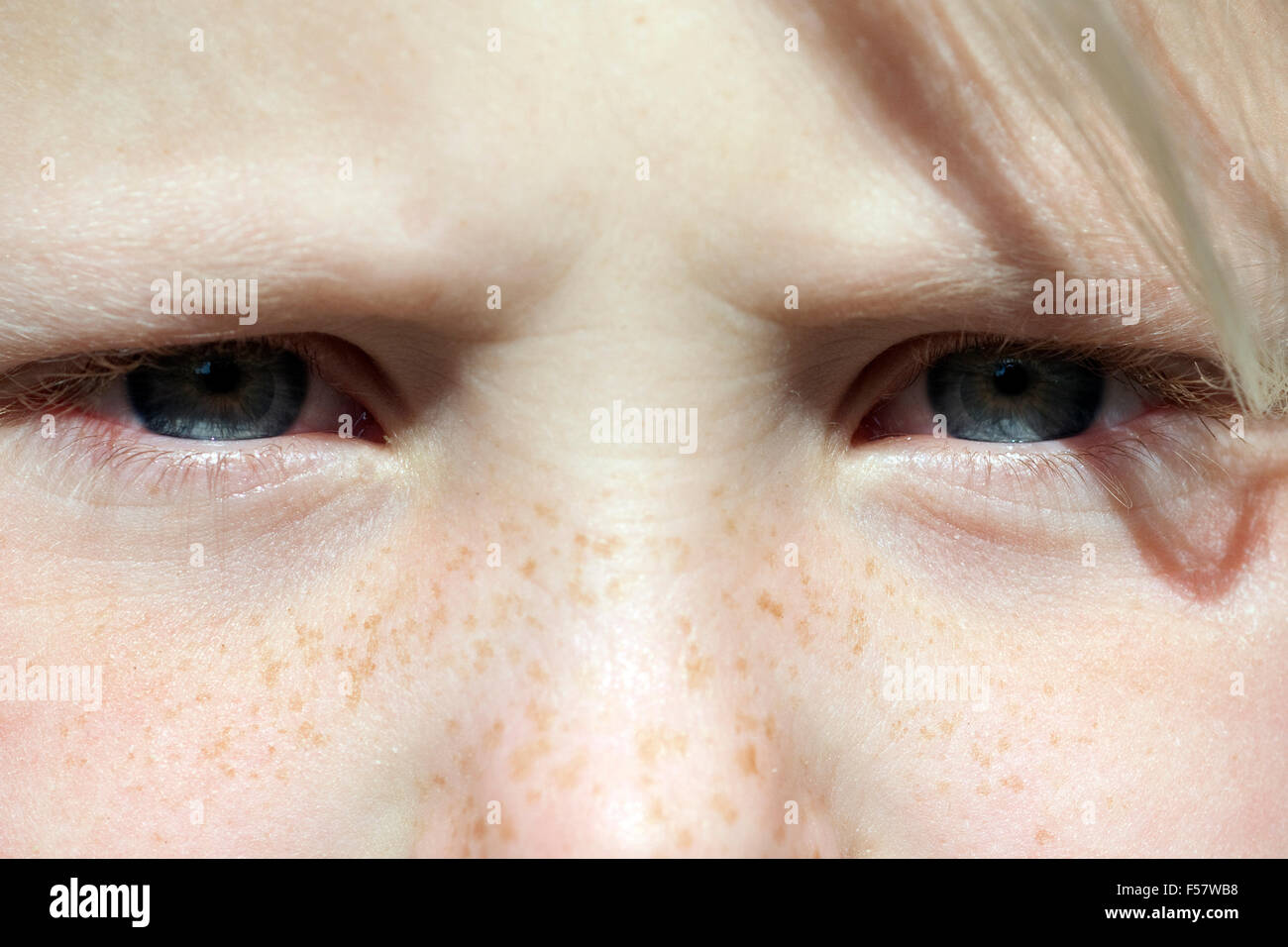 Charmant Anatomie Der Augenlinse Ideen - Menschliche Anatomie Bilder ...