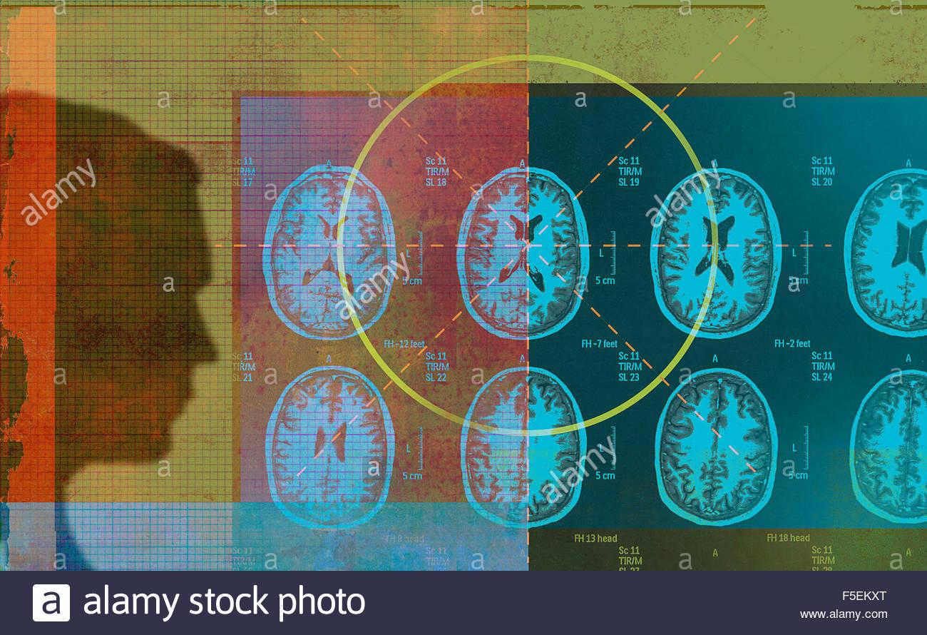 Mann, die Analyse von MRI-Scan-Ergebnisse Stockbild