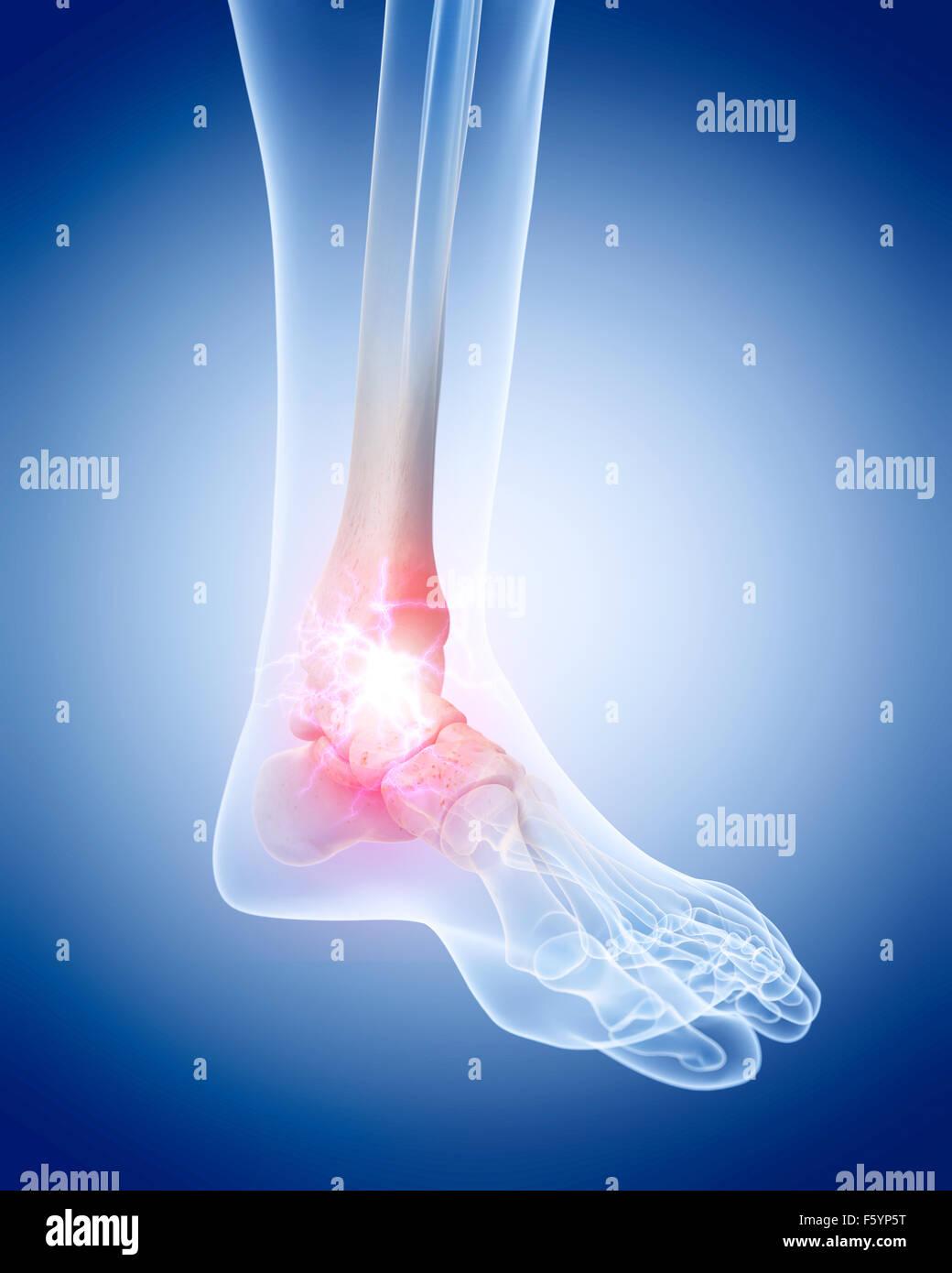 medizinisch genaue Abbildung von einem schmerzhaften Knöchel Stockfoto