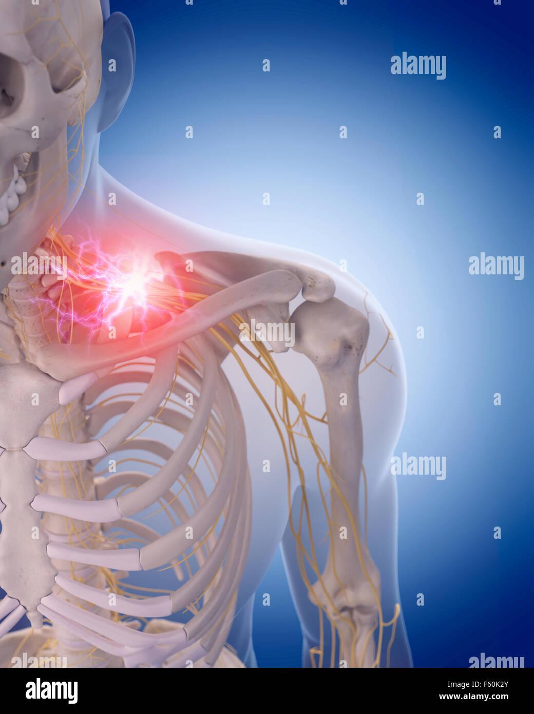medizinisch genaue Darstellung der schmerzhaften Halsnerven Stockfoto
