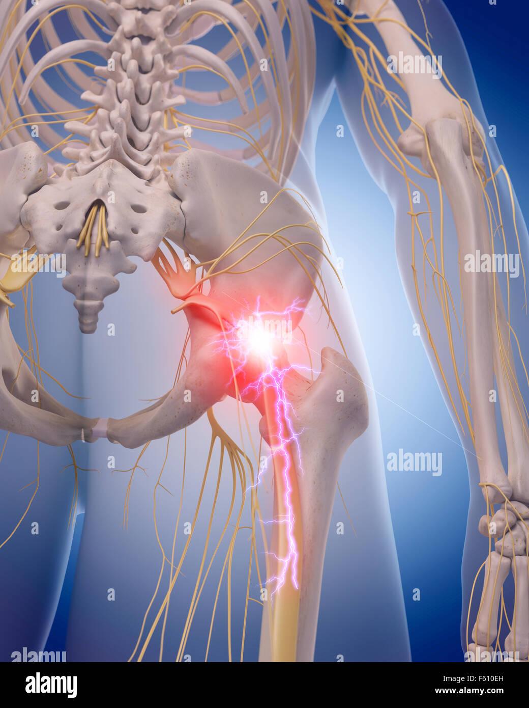 medizinisch genaue Abbildung von einer schmerzhaften Ischiasnerv Stockbild