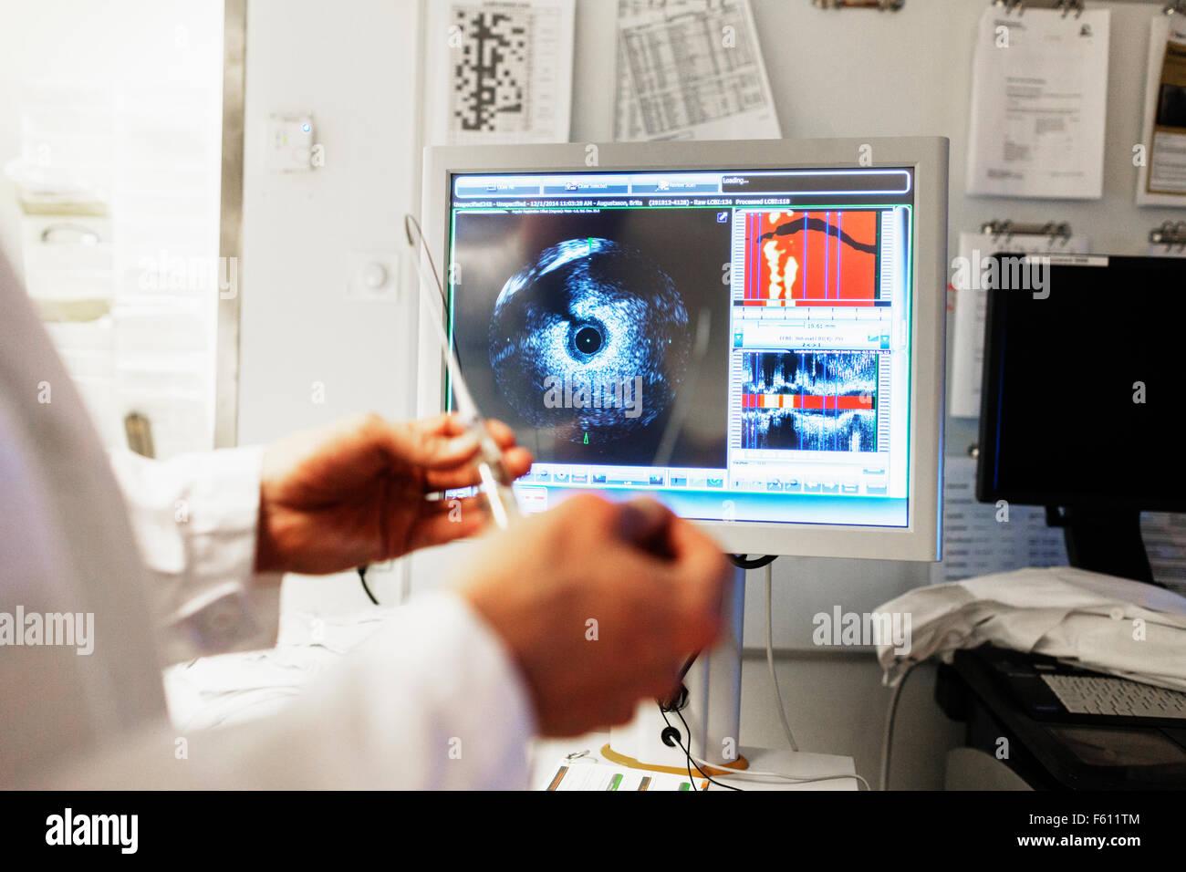 Arzt Holding Katheter vor intravaskulären imaging-system Stockbild