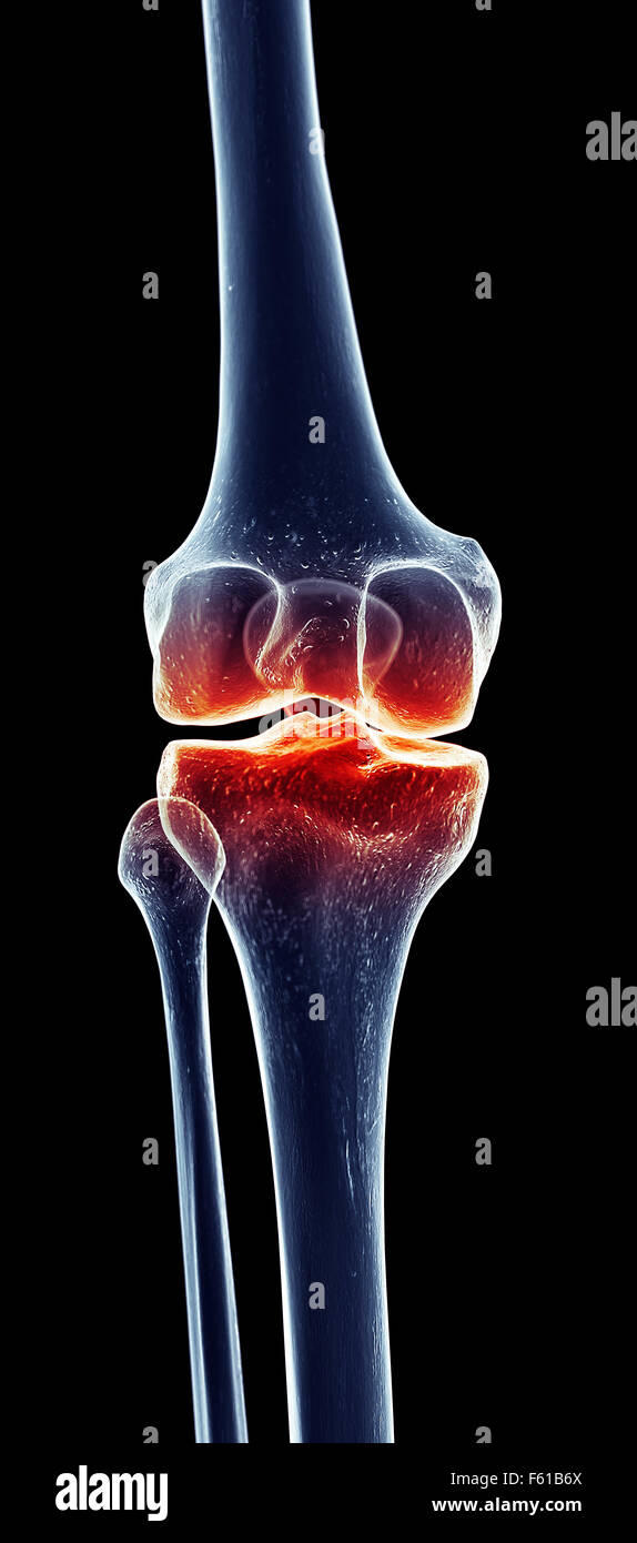 Anatomie-Arthrose-Bones-menschlichen Knie-Bein-Skelett Stockfoto ...