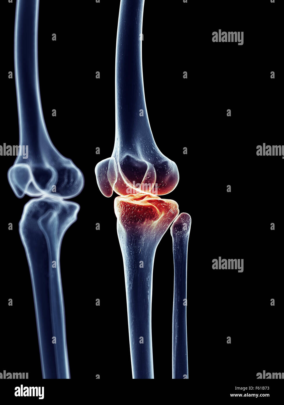 Human Knee Stockfotos & Human Knee Bilder - Alamy