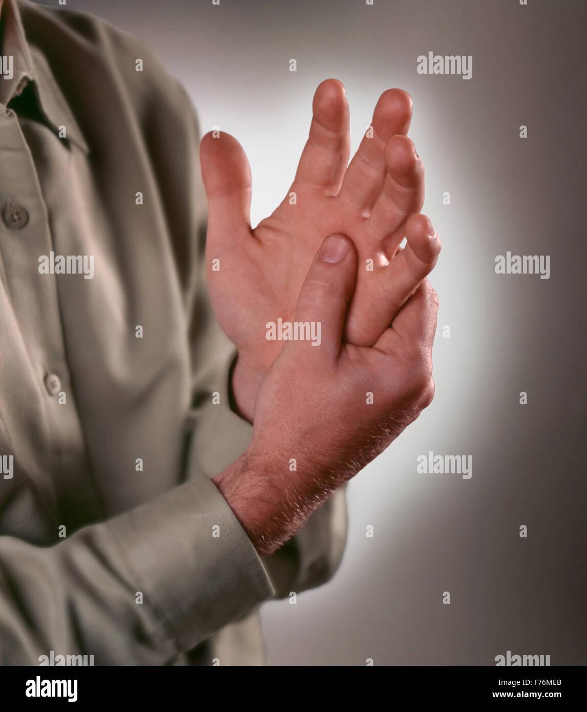 Arthritis Stockbild