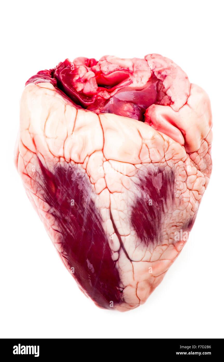 Herz beschichtet mit einer Schicht aus Fett durch hohe Cholesterinwerte Lipid Lipide Schaden verursacht Stockbild