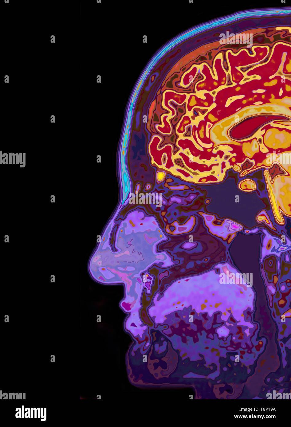 Mri Image Head Showing Brain Stockfotos & Mri Image Head Showing ...