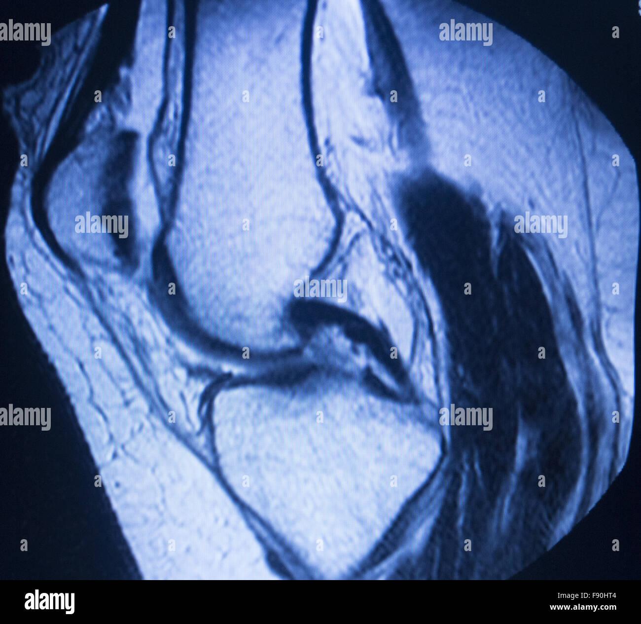 MRT Magnet-Resonanz-Tomographie medizinische Scan-Test-Ergebnisse ...
