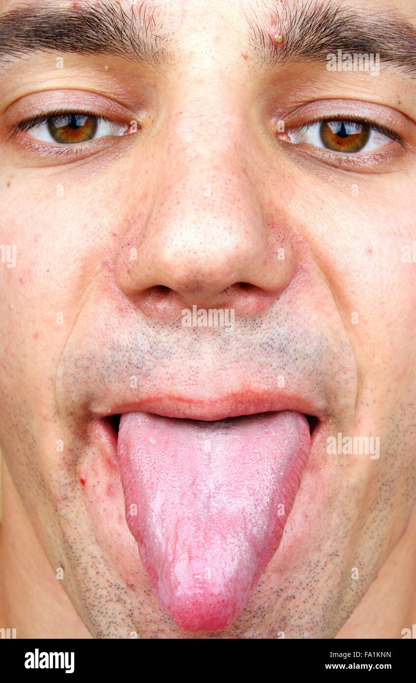 bakterielle infektion beim mann