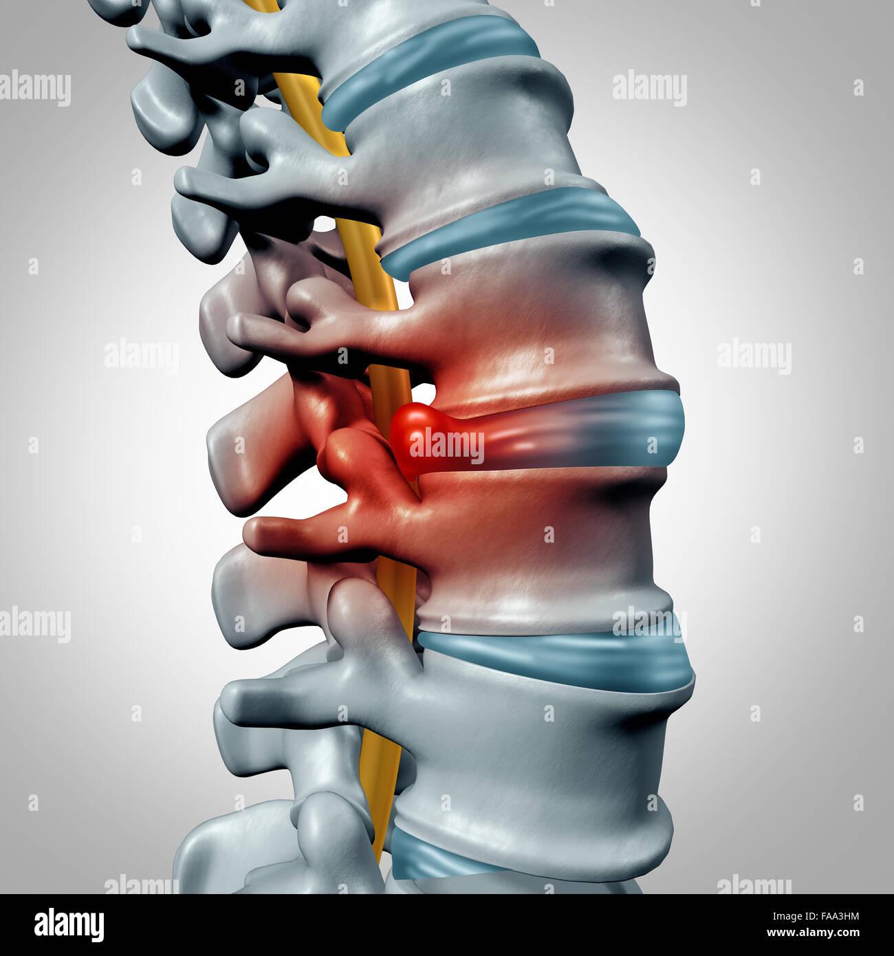 Bandscheibenvorfall-Konzept und Wirbelsäule Schmerzen Diagnose als ein Systemsymbol der menschlichen Wirbelsäule Stockbild