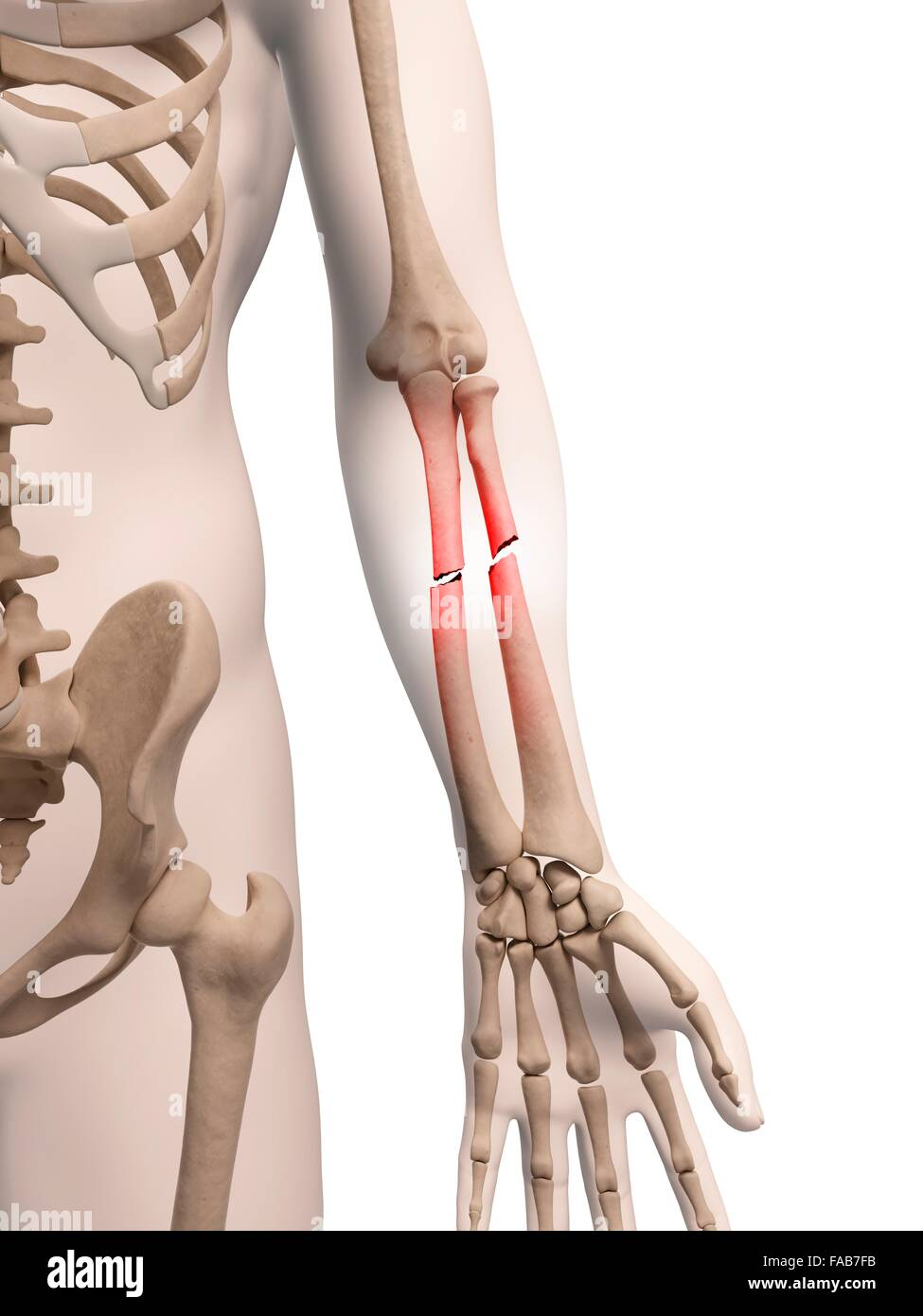 Broken Bones Stockfotos & Broken Bones Bilder - Alamy