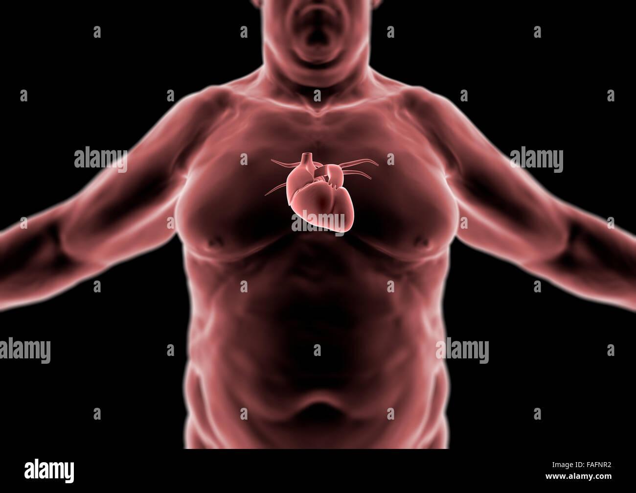 menschliche Körper in 3D, Dicke Person, Herz und Anatomie ...