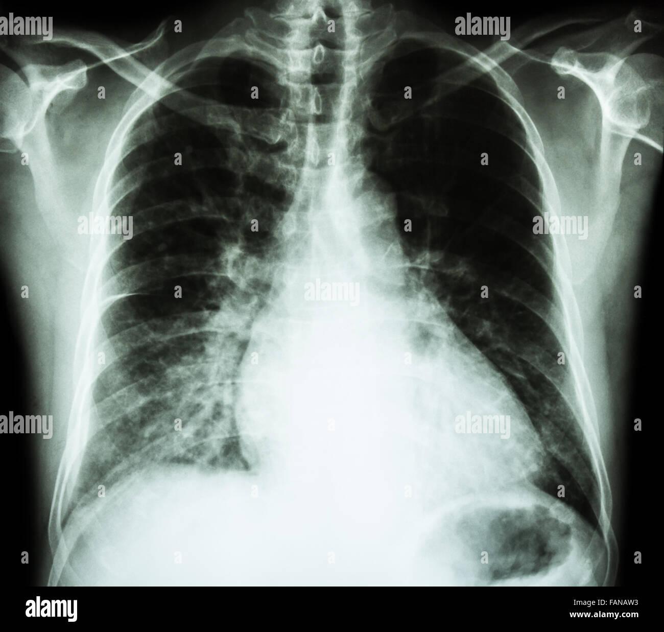Herzinsuffizienz (Film x-ray Brust PA aufrecht: Kardiomegalie und ...