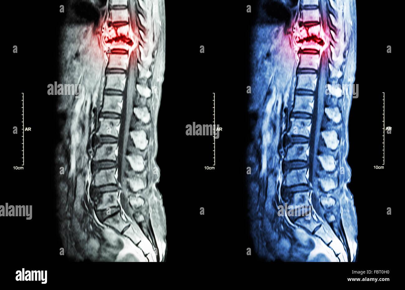 Wirbelsäule Metastasen (Krebs zu verbreiten, Brustwirbelsäule) (MRI ...