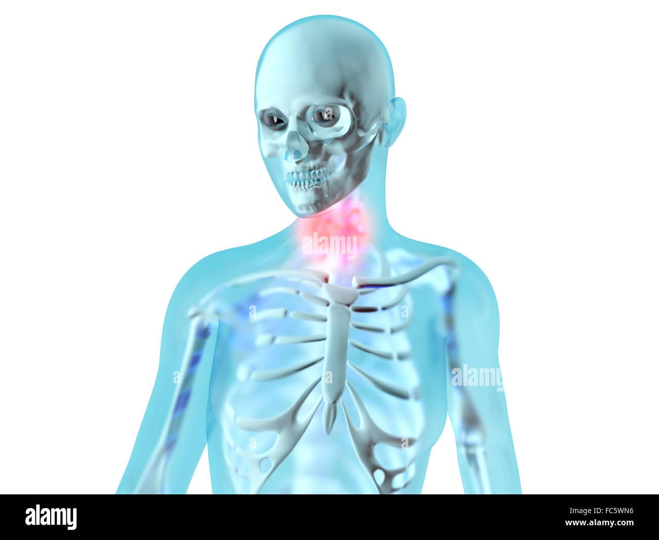 Weibliche Anatomie - Hals Schmerzen Stockfoto, Bild: 93557666 - Alamy