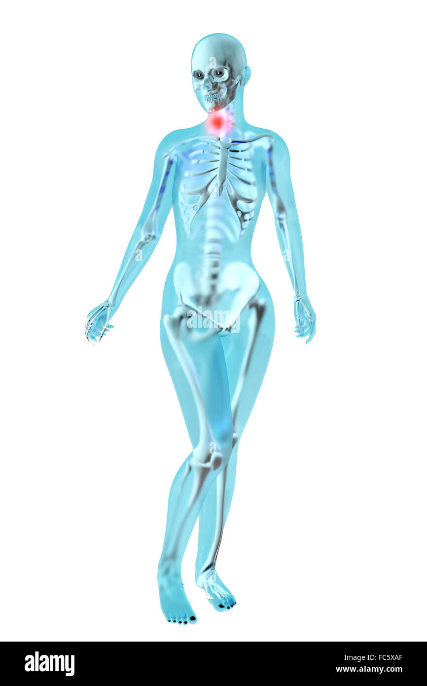 Weibliche Anatomie - Hals Schmerzen Stockfoto, Bild: 93558151 - Alamy