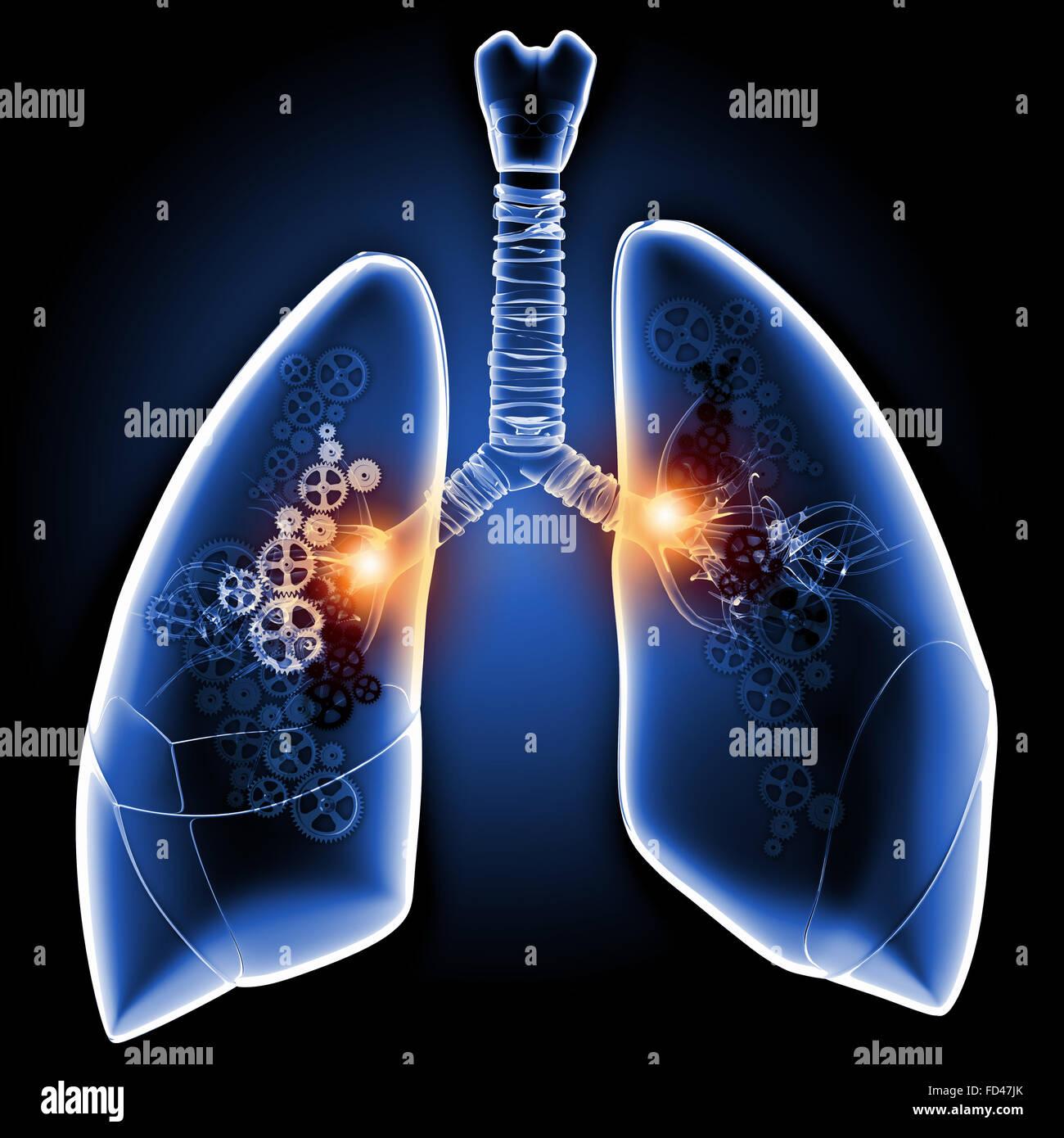 Menschliche Lunge mit Mechanismen. Gesundheit und Medizin Stockfoto ...