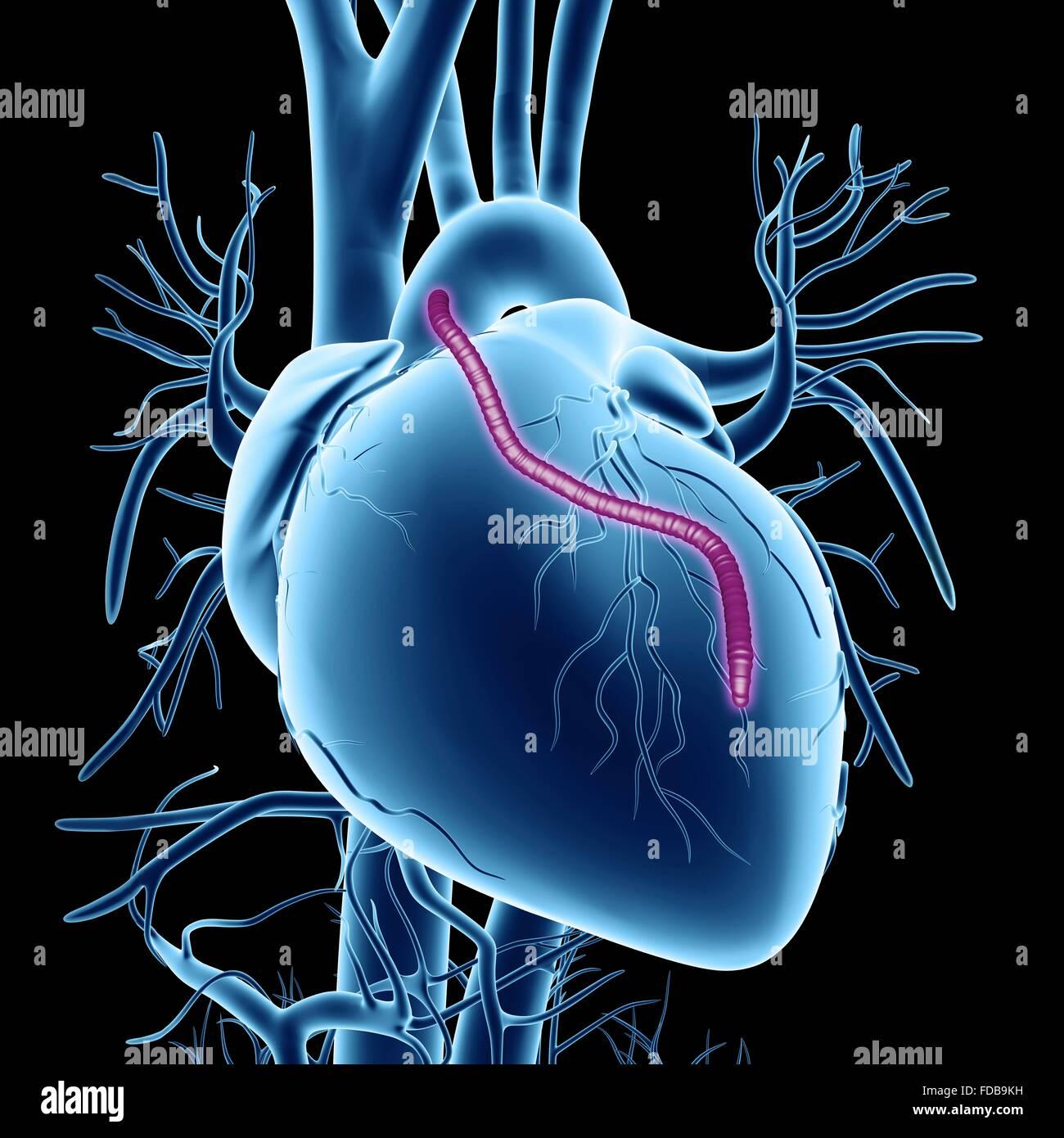 Coronary Artery Bypass Graft Stockfotos & Coronary Artery Bypass ...
