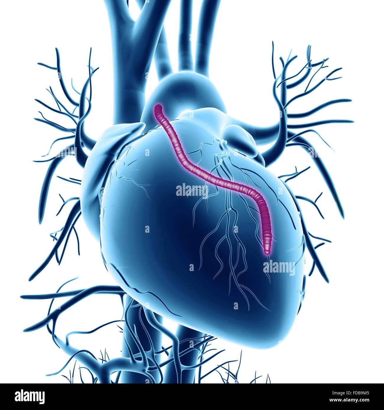 mit cabg Die isolierte koronare bypassoperation (cabg) ist nach wie vor an der  vor  allem bei 3 - gefäßerkrankung mit oder ohne hauptstammbeteiligung  durchgeführt.