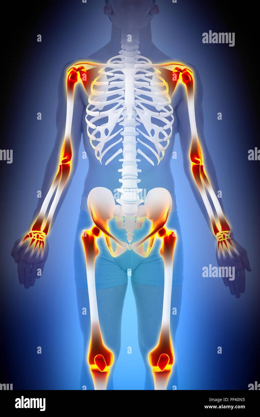 Arthritis Gelenke Schmerzen Anatomie männliche Konzept Stockbild
