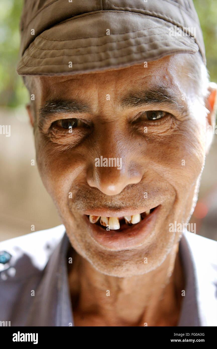 Mann zähne alter ohne Alter mann