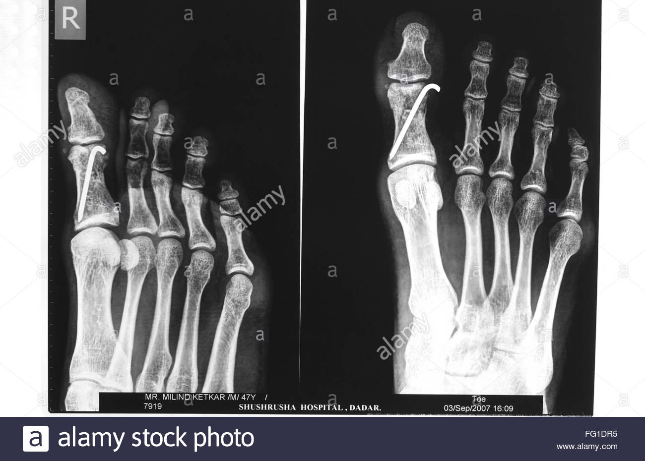 Fractured Fingers Stockfotos & Fractured Fingers Bilder - Alamy