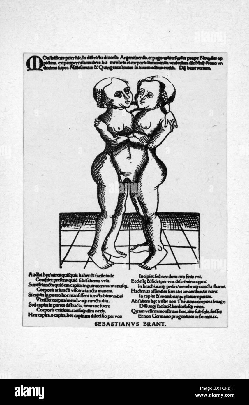 Medizin, Anomalie, siamesische Zwillinge, weibliches Zwillingspaar, Holzschnitt, mit Gedicht von Sebastian Brant Stockbild