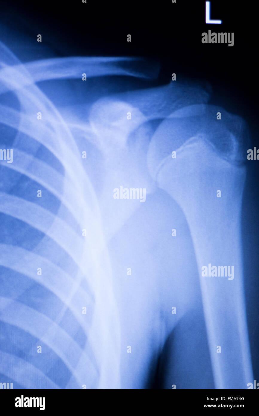 Wirbelsäule Wirbel Rippen zurück Verletzungen Wirbelsäule ...