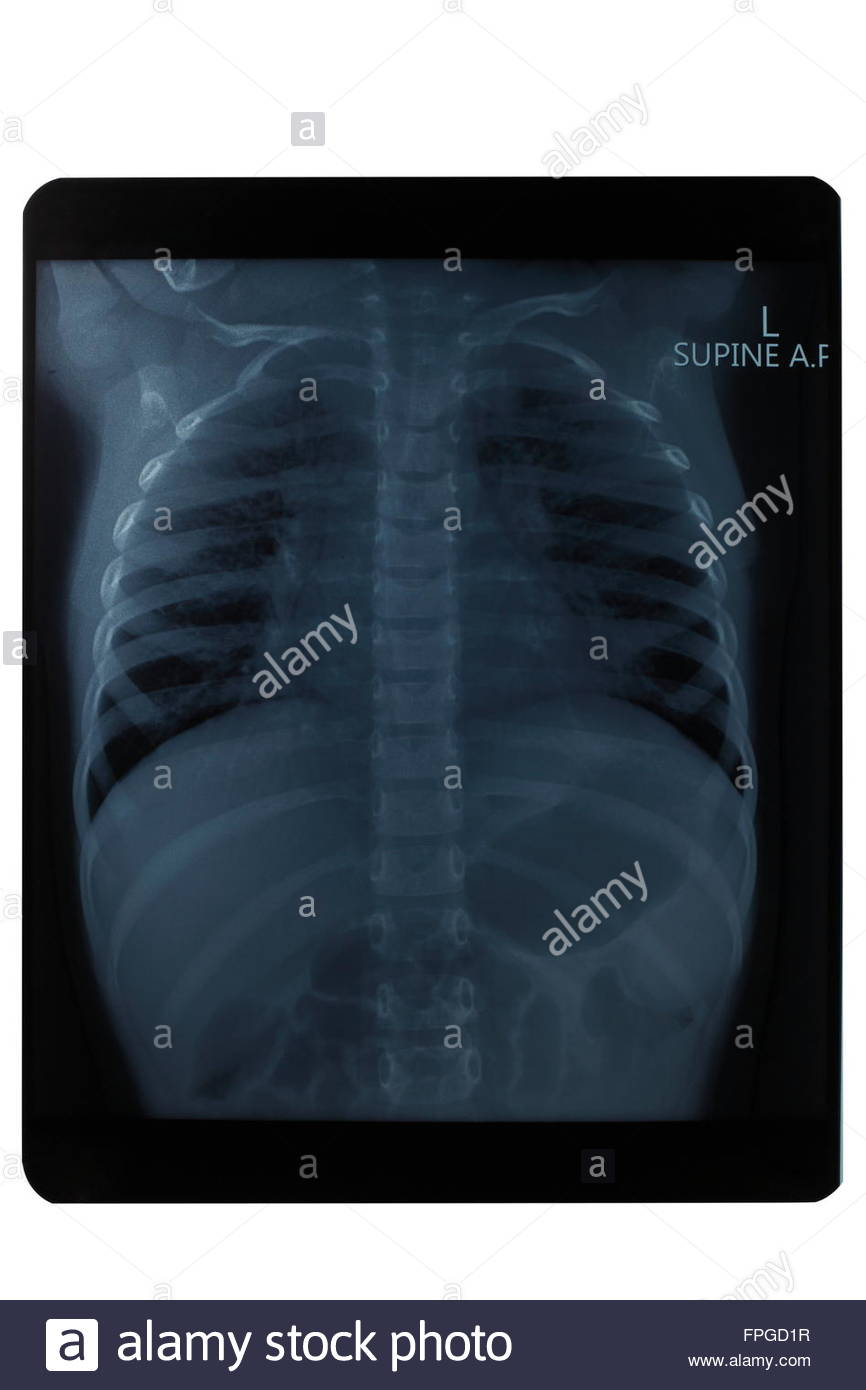 Oberkörper Röntgenbild, Gesundheit, Medizin Stockbild
