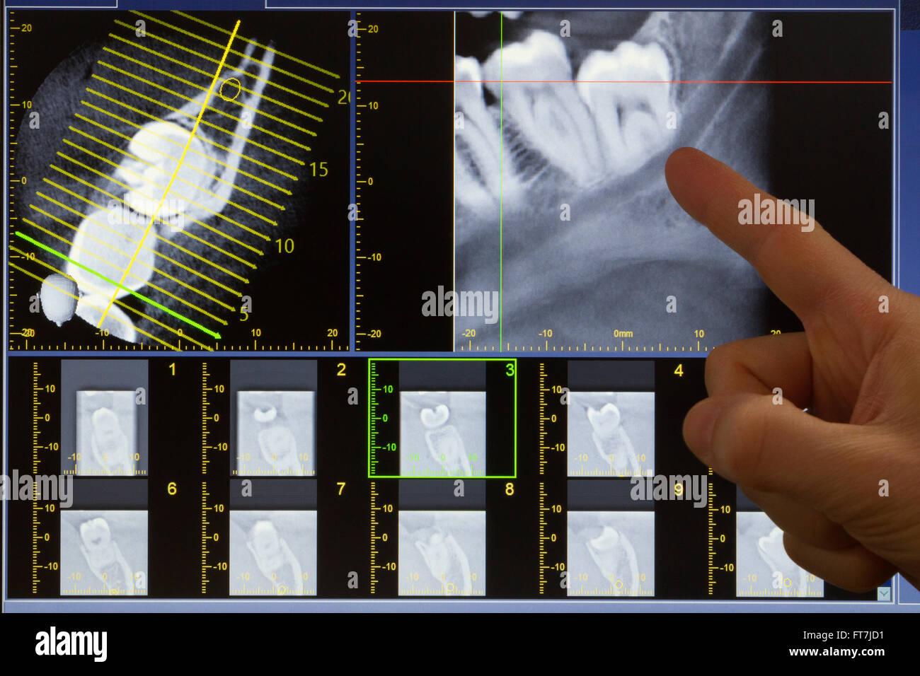 X Ray Computed Tomography Stockfotos & X Ray Computed Tomography ...