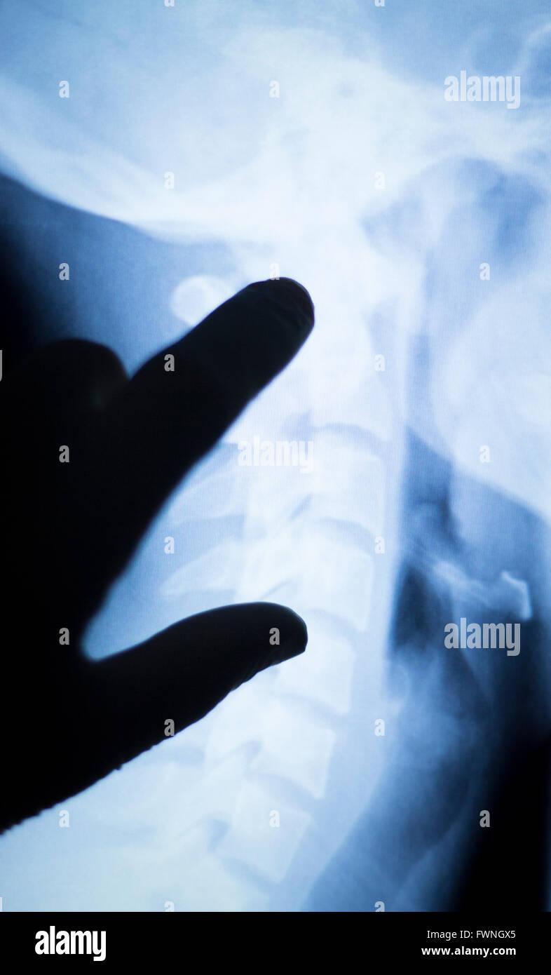 Großartig Zurück Anatomie Der Wirbelsäule Fotos - Menschliche ...