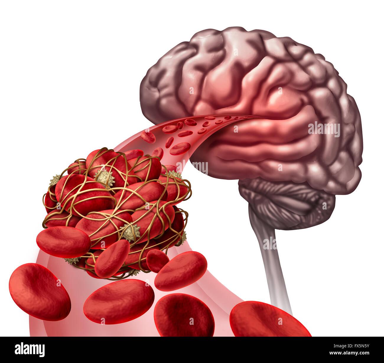 Gehirn Blutgerinnsel medizinisches Konzept als 3D Abbildung ...
